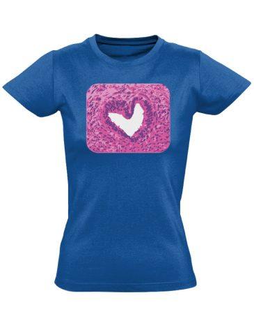 SzeretMetszet patológiai női póló (kék)