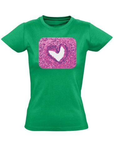 SzeretMetszet patológiai női póló (zöld)