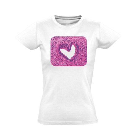 SzeretMetszet patológiai női póló (fehér)