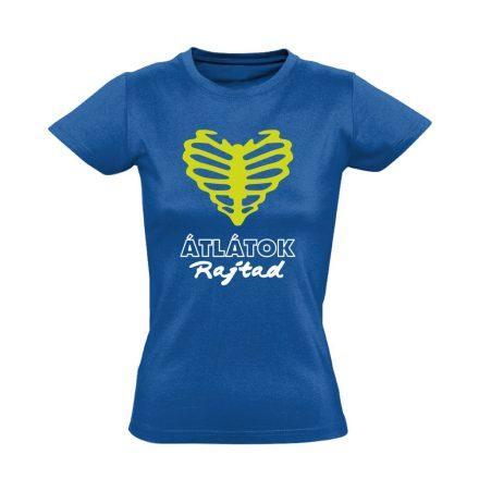 Átlátok rajtad radiológiai női póló (kék)