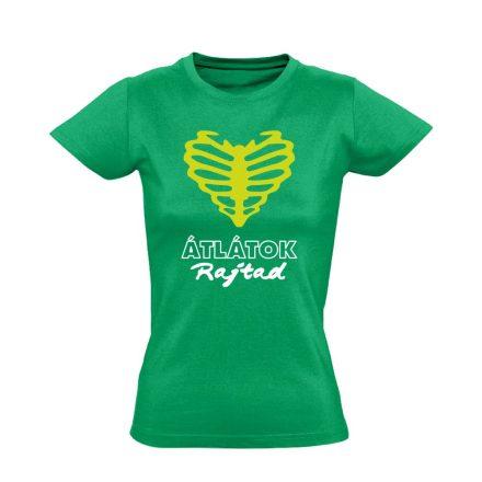 Átlátok rajtad radiológiai női póló (zöld)