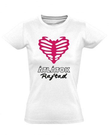 Átlátok rajtad radiológiai női póló (fehér)