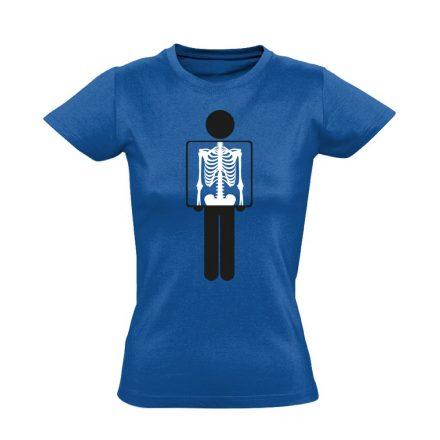 Belém látsz röntgenes női póló (kék)