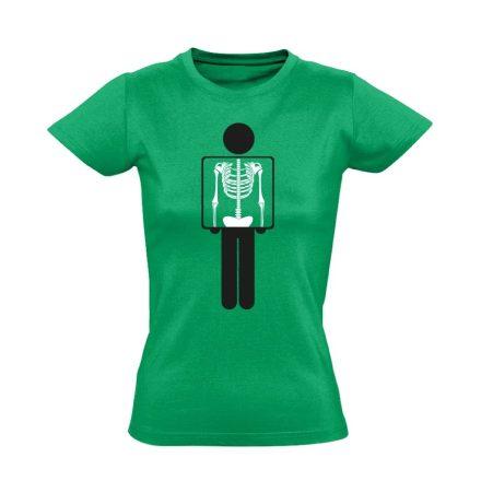 Belém látsz röntgenes női póló (zöld)
