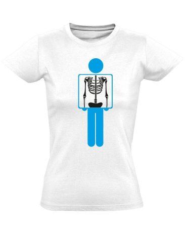 Belém látsz röntgenes női póló (fehér)
