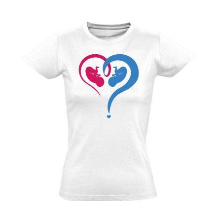 Fiú vagy Lány? szülészeti női póló (fehér)